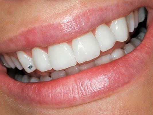 Hedendaags tandjuweel tand - diamant - Mondhygiënepraktijk Agnes Sluijter EQ-19